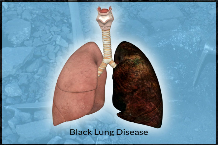 what is black lung disease